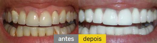 dental denta seal