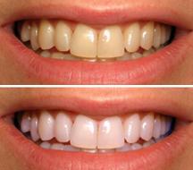 denta seal melhor dental clareador