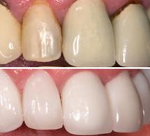 composição dental denta seal